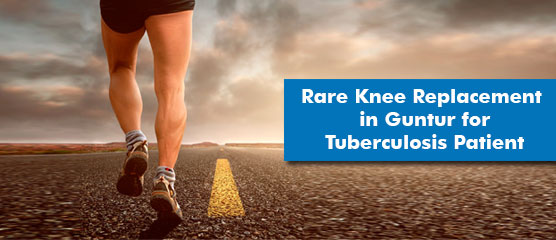 total_knee_joint_replacement_surgey_specialist_in_vijayawada_guntur_prakasam_ap_india _shri_ramchandra_joint_replacement_centre_happy-hospitals